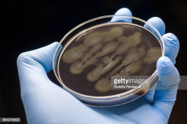 campylobacter bacteria - plague stock photos and pictures