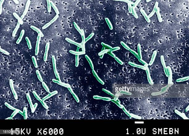 Campylobacter Is A Family Of Curved Gram Negative Bacteria Several Species Have Been Identified Campylobacter Pylori The Causal Agent Of Gastritis...