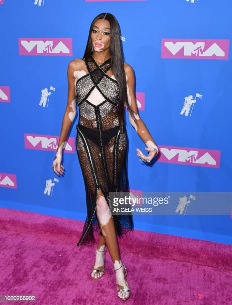 Canadian model Winnie Harlow attends the 2018 MTV Video Music Awards at Radio City Music Hall on August 20, 2018 in New York City.