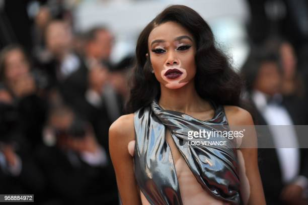 Canadian model Winnie Harlow poses as she arrives on May 15 2018 for the screening of the film 'Solo A Star Wars Story' at the 71st edition of the...