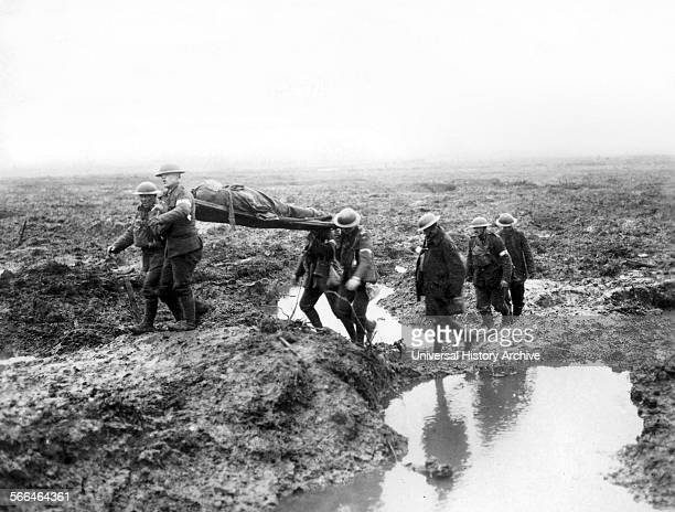 Canadian soldiers wounded at the Second Battle of Passchendaele was the culminating attack during the Third Battle of Ypres of the First World War...
