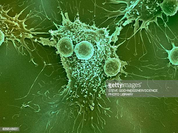 cancer cell and t lymphocytes, sem - sem stock pictures, royalty-free photos & images