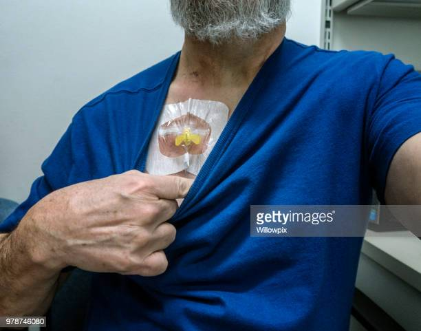 cancer chemotherapy drug patient waiting for intravenous infusion - iv infusion stock photos and pictures