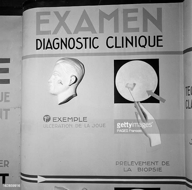 Cancer Exhibition En mai 1955 au Palais de la Découverte exposition scientifique sur le cancer Panneau explicatif