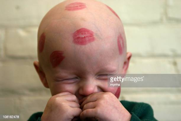 Cancer Niños; bebé besos con lápiz labial