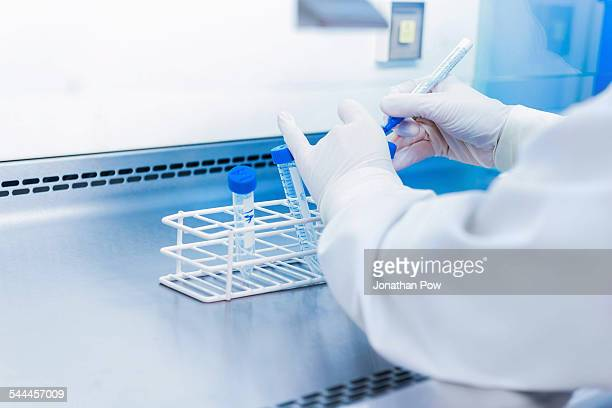 Cancer research laboratory, hands of scientist preparing cells for centrifuge