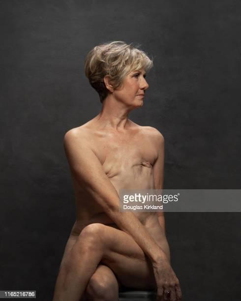 Cancer Survivor Anne Marie photographed in Douglas Kirkland's Studio on 3rd April 2019