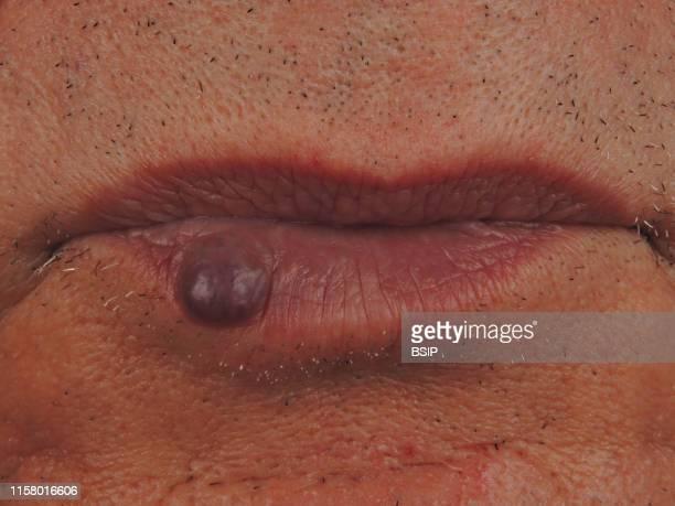 Capillo-venous angioma of the lip.