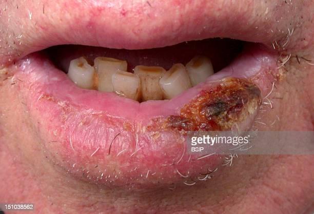 Carcinoma Of The Lip