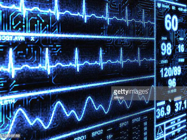 cardiac monitor - pulse trace stock pictures, royalty-free photos & images