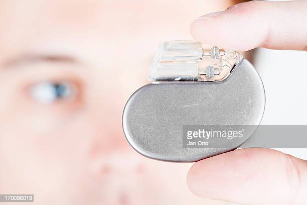cardiac pacemaker - cardiac arrhythmia stock pictures, royalty-free photos & images