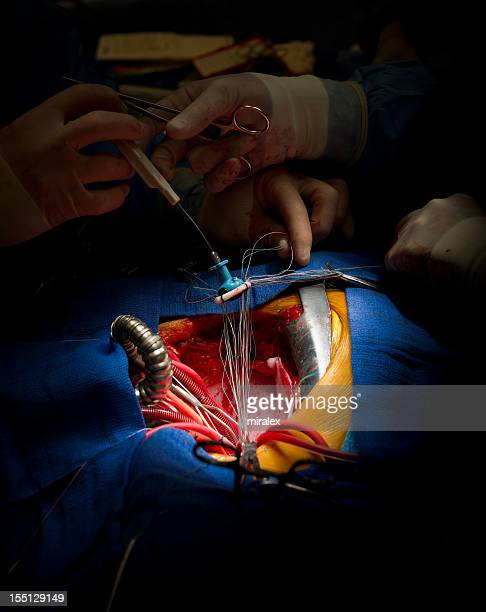 Cardiac Surgery Mitral Valve Replacement