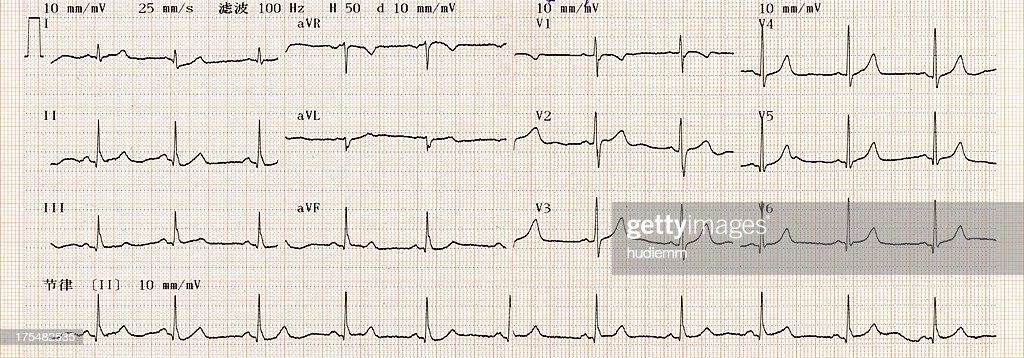 Cardiogram Chart (ECG) : Stock Photo