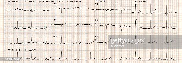 cardiogram chart (ecg) - printout stock pictures, royalty-free photos & images