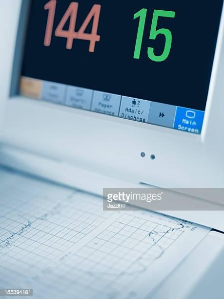 Cardiogram Maschine, Nahaufnahme