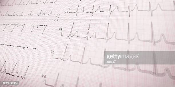 cardiogram - eeg stock pictures, royalty-free photos & images