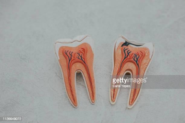 caries  teeth