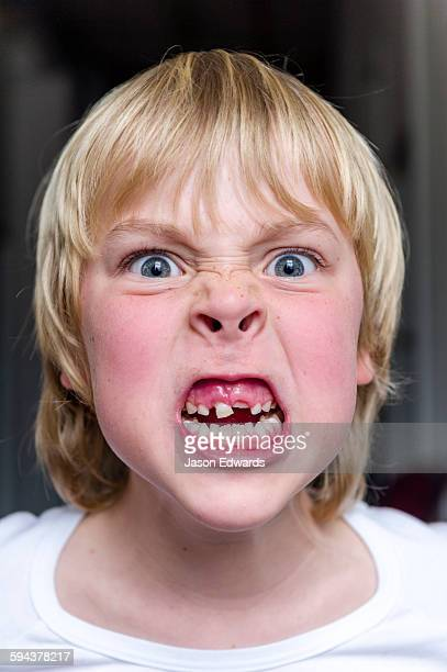 A boy making an angry face to show his missing teeth.