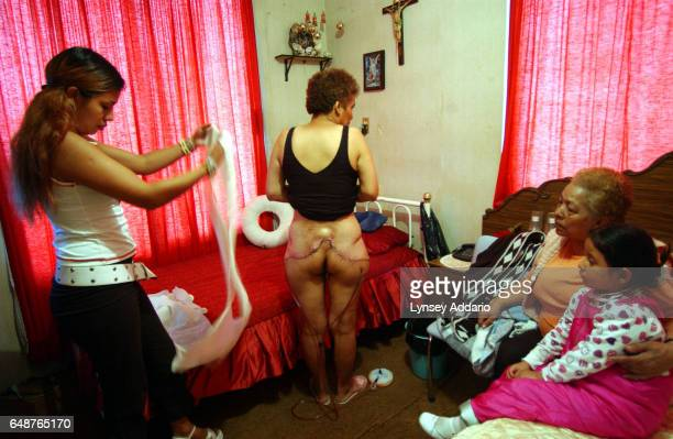 Carmela Estrela stands with her two daughters and mother while waiting to get her bandages changed at home in Mexico City Mexico Nov 26 2002 Like...