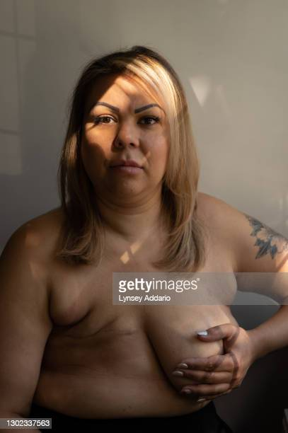 Caroline Boore, 37 years old, photographed in her bedroom on September 24, 2020 in Surrey, England. Diagnosed in November 2017, when she was 34 years...