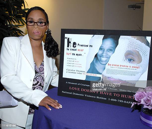 Before After Reconstructing Carolyn Thomas Documentary by Mary Glynn at The Raleigh Studios in Los Angeles California United States