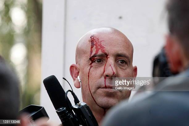 Carte Blanche cameraman Dudley Saunders who was injured by ANCYL leaderJulius Malema supporters protesting outside Luthuli House on August 30 2011 in...