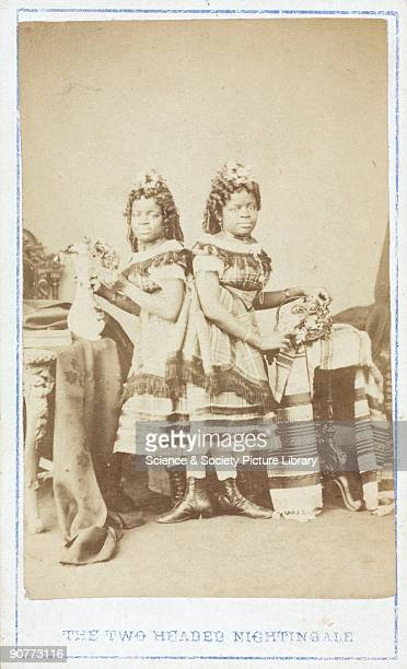 Carte de visite of �The TwoHeaded Nightingale� Millie and Christine McKay were connected at the base of the spine Born into slavery in America's...