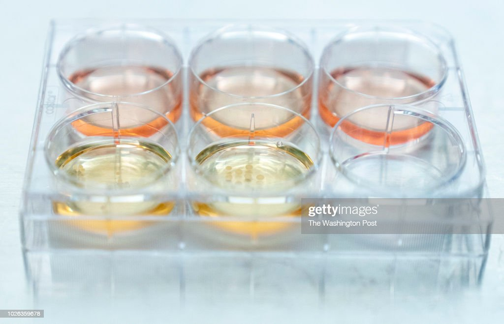 Researchers at UPenn are growing human brain organoids (sometimes called minibrains) : News Photo