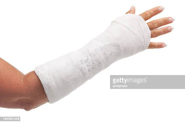 cast arm - cast colors for broken bones stock pictures, royalty-free photos & images