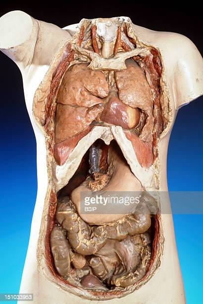Cast Of A Woman's Trunk Showing The Thoracic And Abdominal Organs Following Resection Of The Liver And Small Intestine Copies Of Castings Done By A...