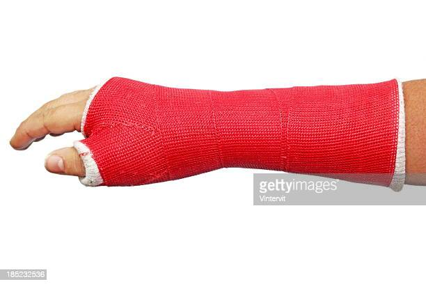cast - cast colors for broken bones stock pictures, royalty-free photos & images