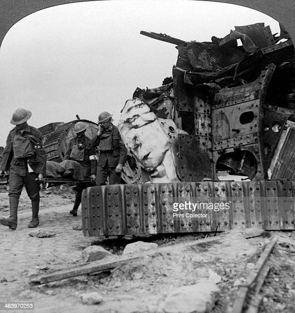 Casualties from the front pass destroyed tanks VillersBretonneux France World War I 1918 VillersBretonneux was the scene of the first tank battle in...