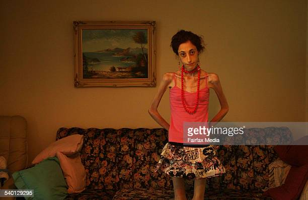 Catena Dimauro suffers from anorexia and weighs a mere 26 kilograms 5 January 2007 SHD Picture by JACKY GHOSSEIN