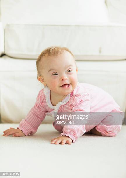 Caucasian baby girl with Down Syndrome