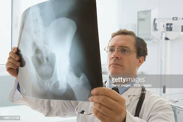 Caucasian doctor looking at hip x-ray
