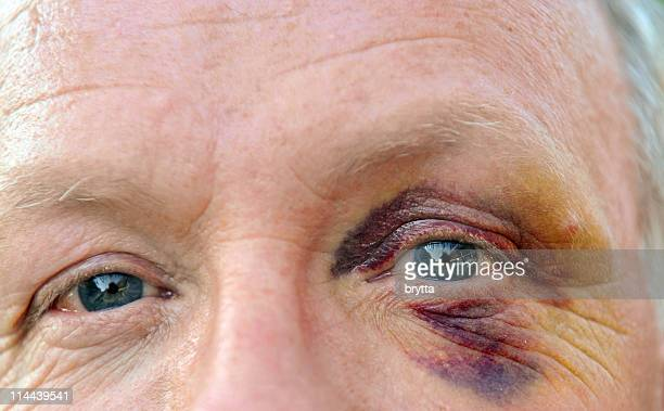 Caucasian senior  man with bruises eye looking at camera