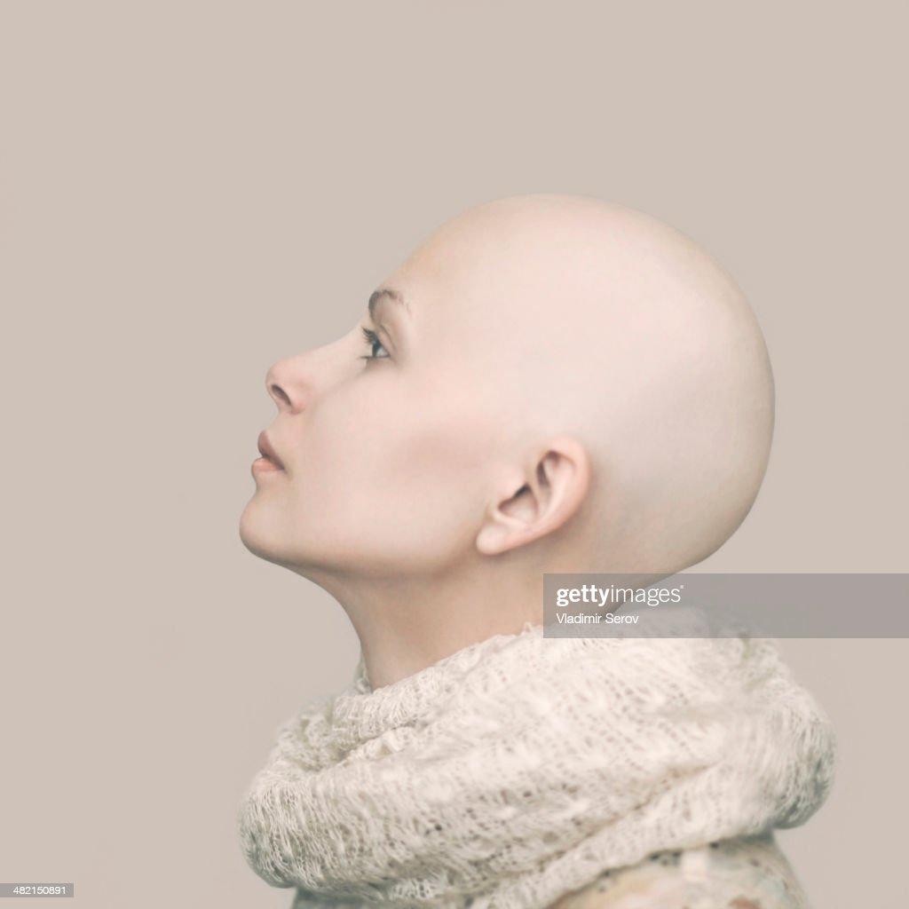 Caucasian woman with bald head : Stock Photo