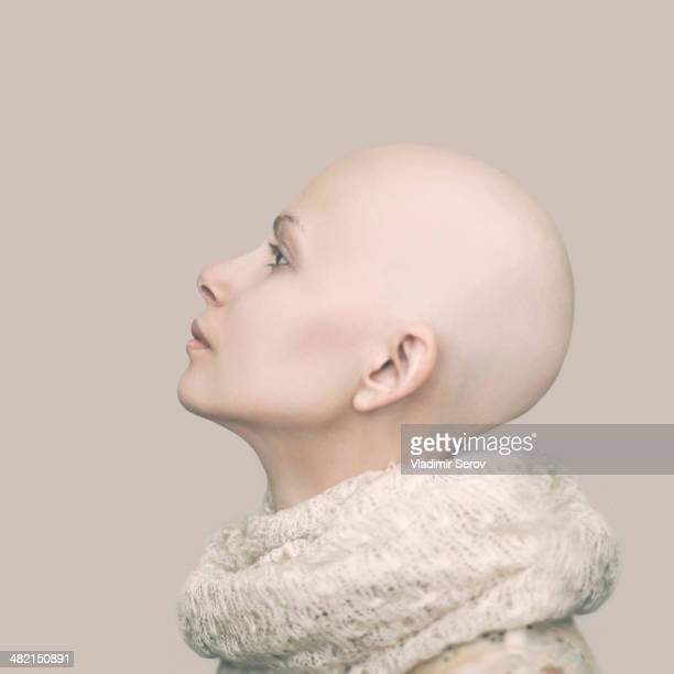 Caucasian woman with bald head