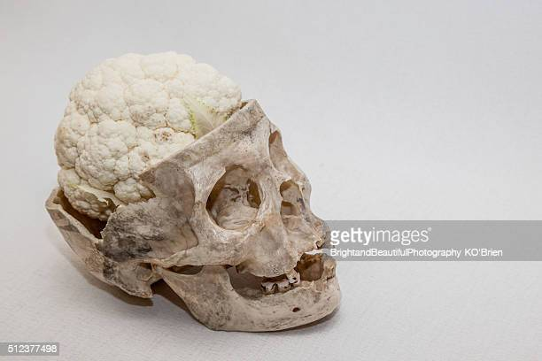 Cauliflower Brain 11