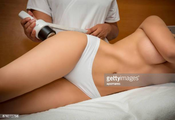 cavitation for cellulite treatment on legs - chubby legs stock photos and pictures