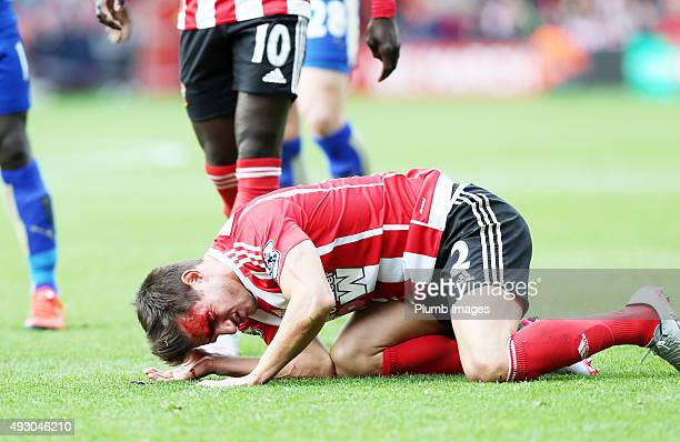 Cedric Soares of Southampton bleeds from a nasty cut after a clash of heads during the Premier League match between Southampton and Leicester City at...