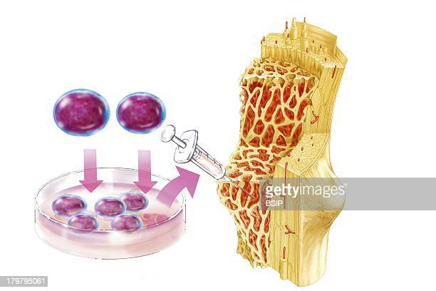 Cell Therapy Illustration Bone Marrow