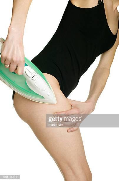 Cellulite terapia