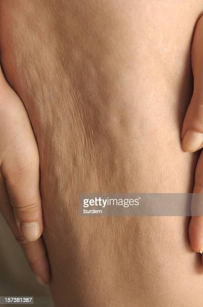 cellulite - celulitis fotografías e imágenes de stock