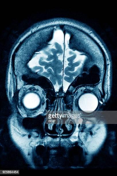 Cerebral atrophy anterior temporal and parietal frontal Ponto cerebellar frontal crosssection MRI cranial scan