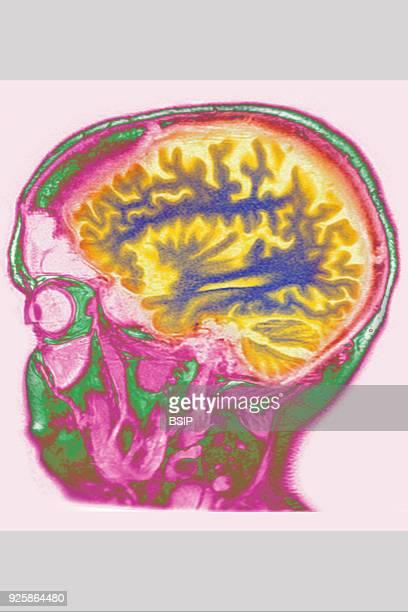 Cerebral atrophy anterior temporal and parietal frontal Ponto cerebellar saggital plane MRI cranial scan