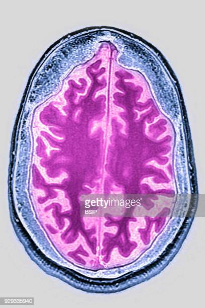 Cerebral atrophy anterior temporal and parietal frontal Ponto cerebellar radial crosssection MRI cranial scan