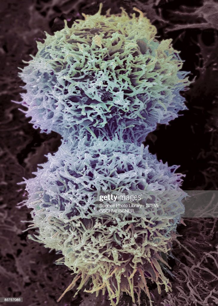Cervical cancer cell : Stock Photo
