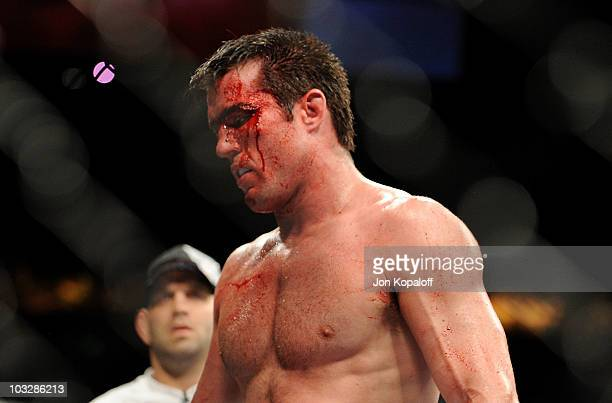Chael Sonnen walks to his corner in between rounds of his fights against Anderson Silva during the UFC Middleweight Championship bout at Oracle Arena...