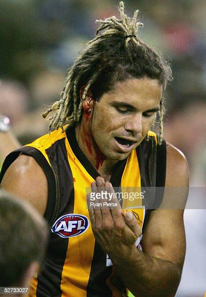 Chance Bateman for the Hawks bleeds after a collision during the round six AFL match between the Carlton Blues and the Hawthorn Hawks at the Telstra...